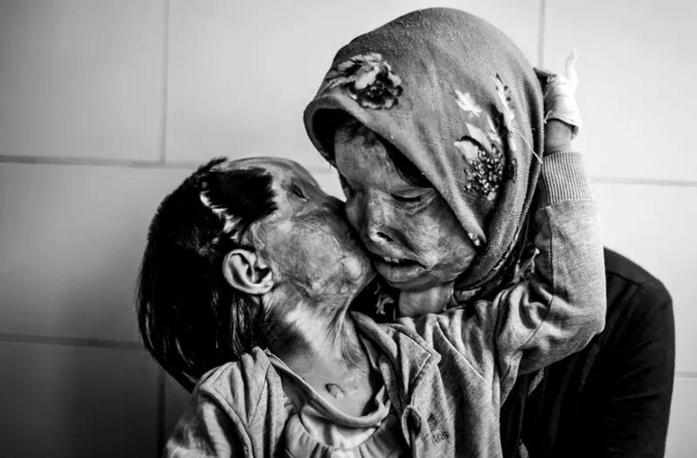 YAsit Saldırısına Uğramış Bir Anne Kız