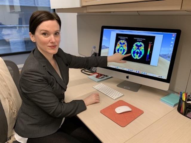 YMenopoz ve Alzheimer Arasındaki İlişki